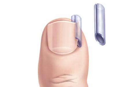 Как лечить избавиться от грибка ногтей