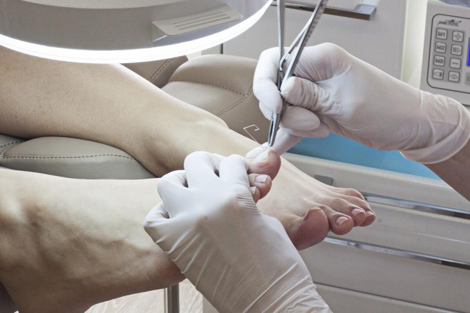 Удаление вросшего ногтя