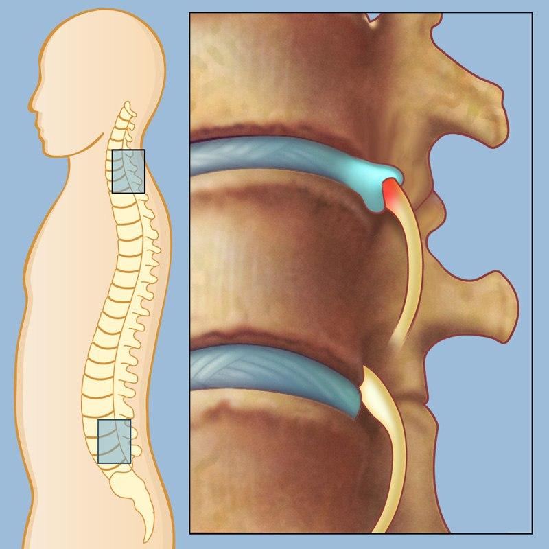 Сильные боли в пояснице при беременности 29 недель